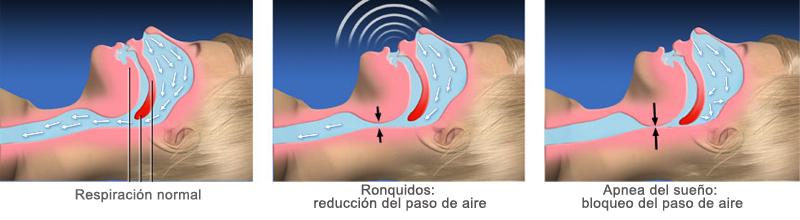 Otorrino Médica Quirúrgica –Síndrome de Apnea del Sueño